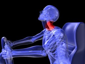 Injuries in Auto Accidents